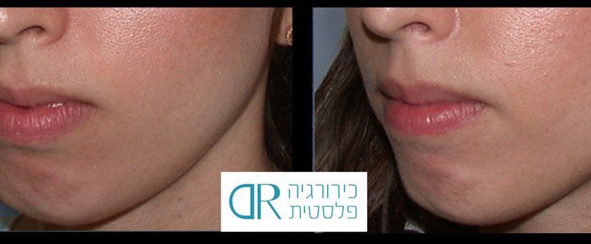 lip-augmentation-2B