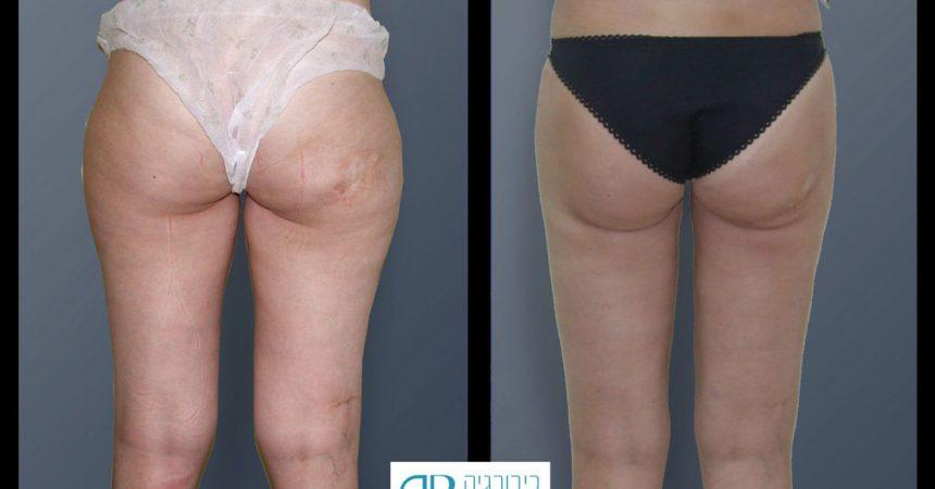 liposction-24-yo-female-thighs-1B