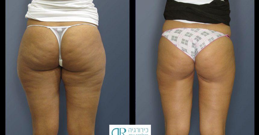 liposction-26-yo-female-thighs-1B