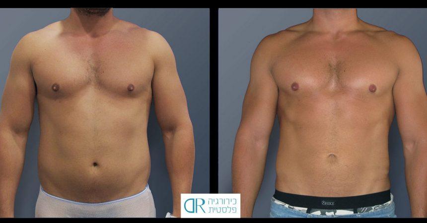 liposction-30-yo-male-abdomen-1A