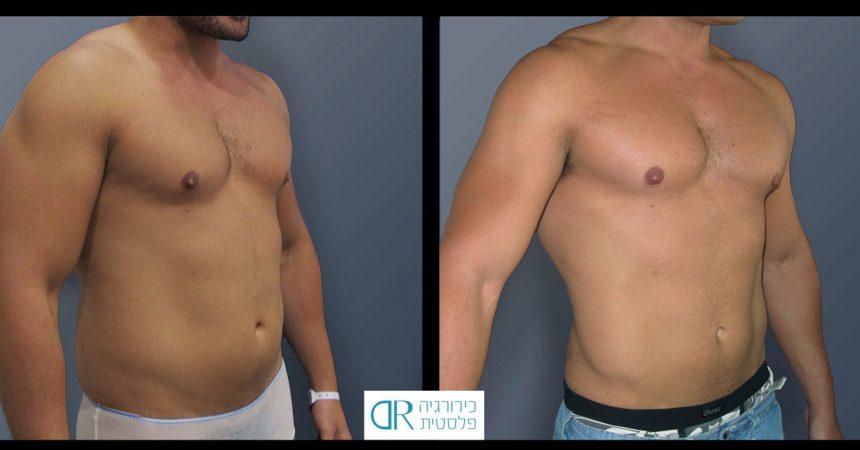 liposction-30-yo-male-abdomen-1B