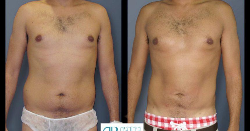 liposction-32-yo-male-abdomen-1A