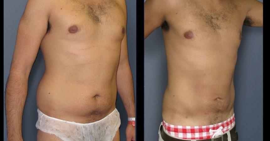 liposction-32-yo-male-abdomen-1B