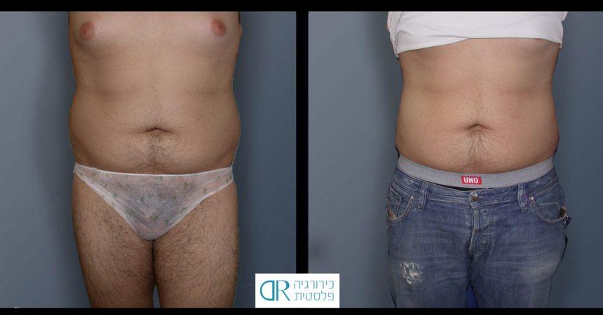 liposction-35-yo-male-abdomen-1A