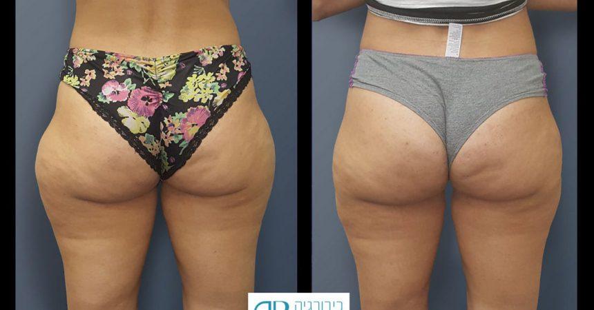 liposction-37-yo-female-thighs-1A