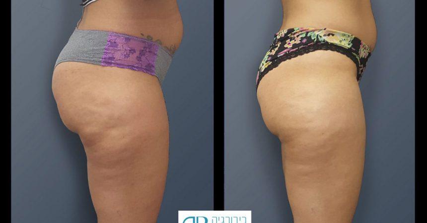 liposction-37-yo-female-thighs-1c