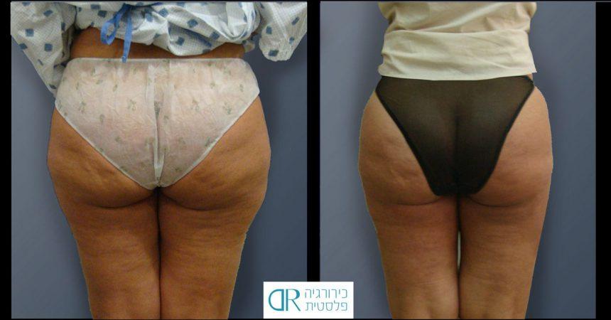 liposction-53-yo-female-thighs-1A