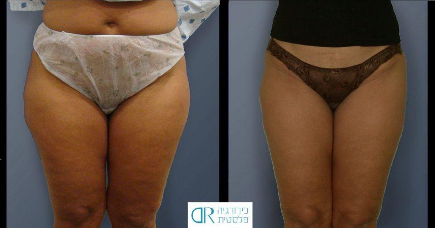 liposction-53-yo-female-thighs-1B