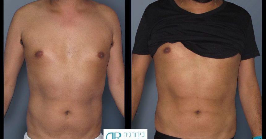 liposction-male-abdomen-1A