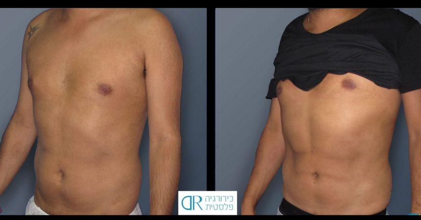 liposction-male-abdomen-1B