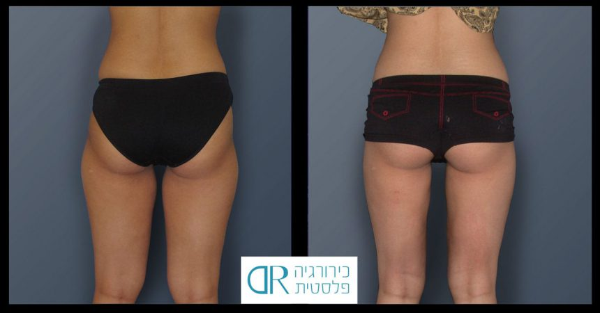 liposuction-5