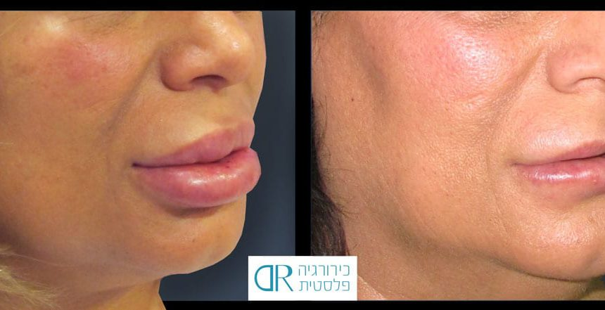 lips-reduction-2A