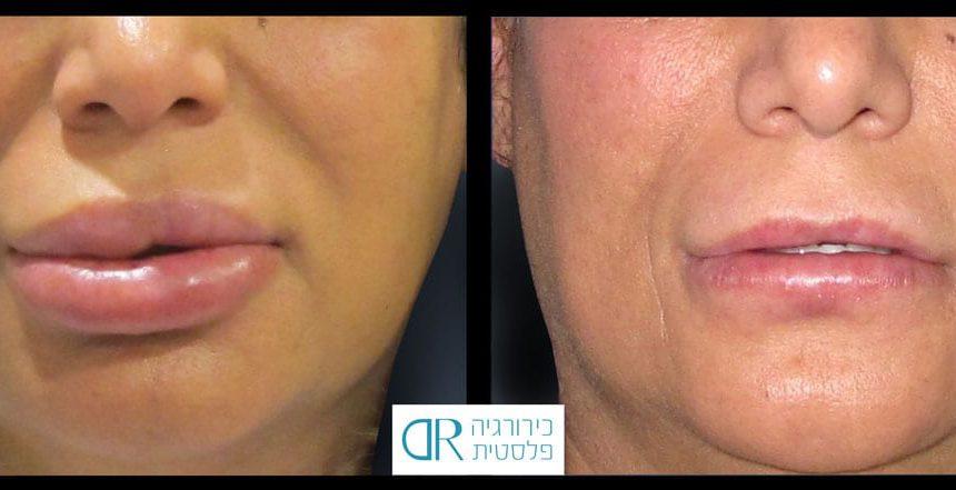 lips-reduction-2B