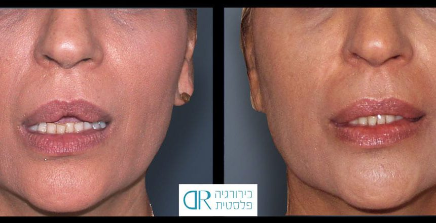 lips-reduction-3A
