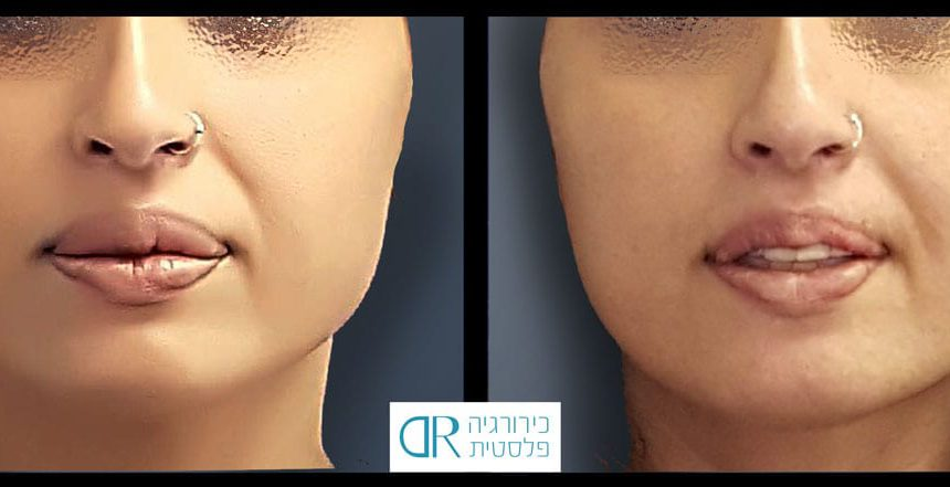 lips-reduction-4A