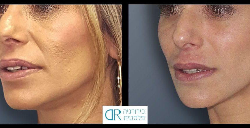 lips-reduction-5B