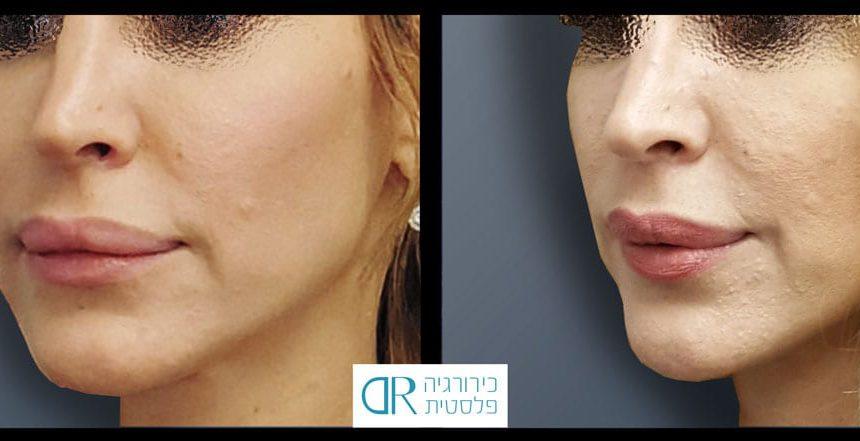 lips-reduction-6B