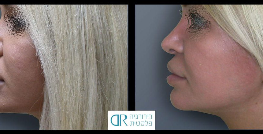 lips-reduction-7B