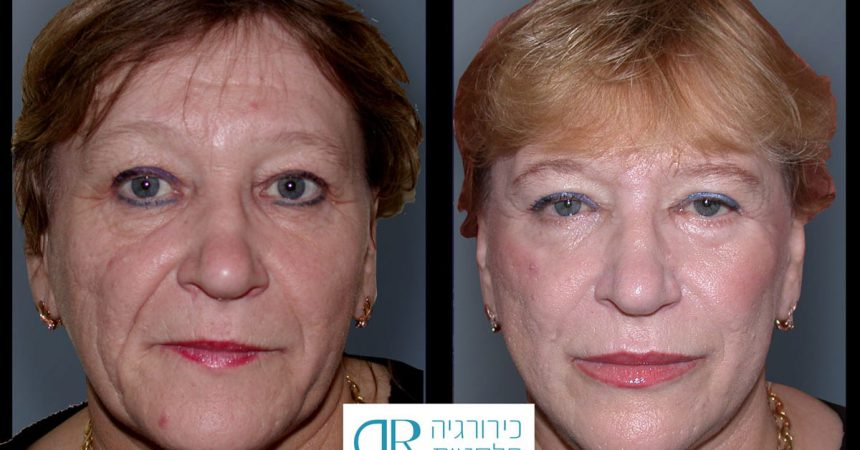 pilling-face-lift-4