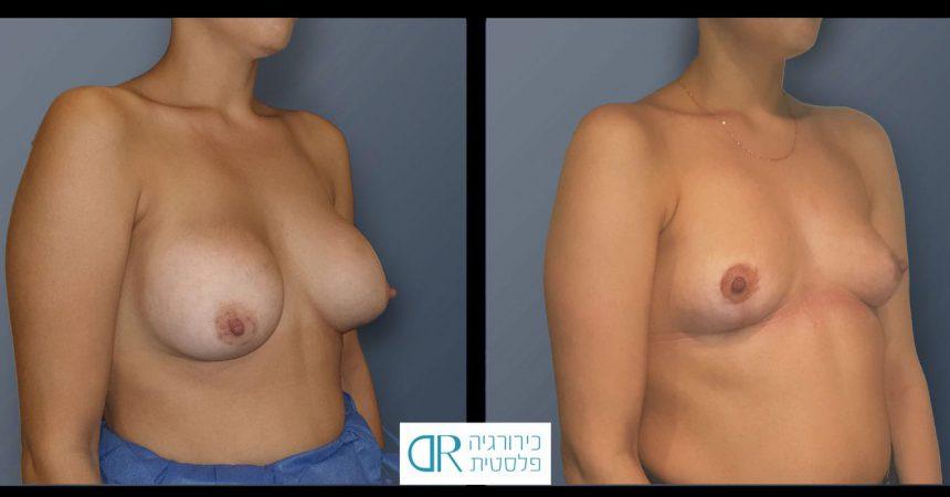 removal-implant-365cc-mastopxy-B