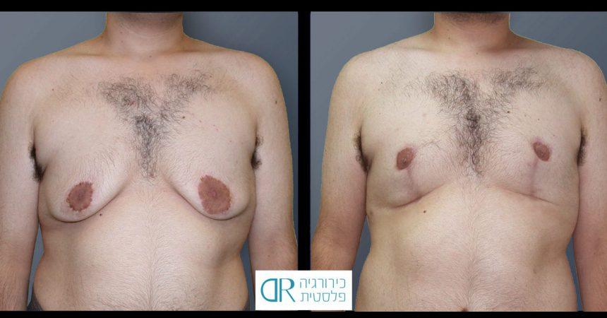 rev-gynecomastia-11A