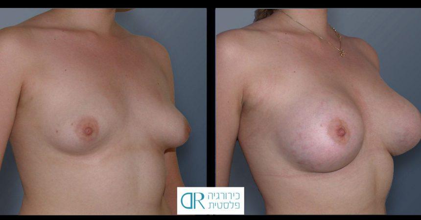 tub-breast-grade-1-1B