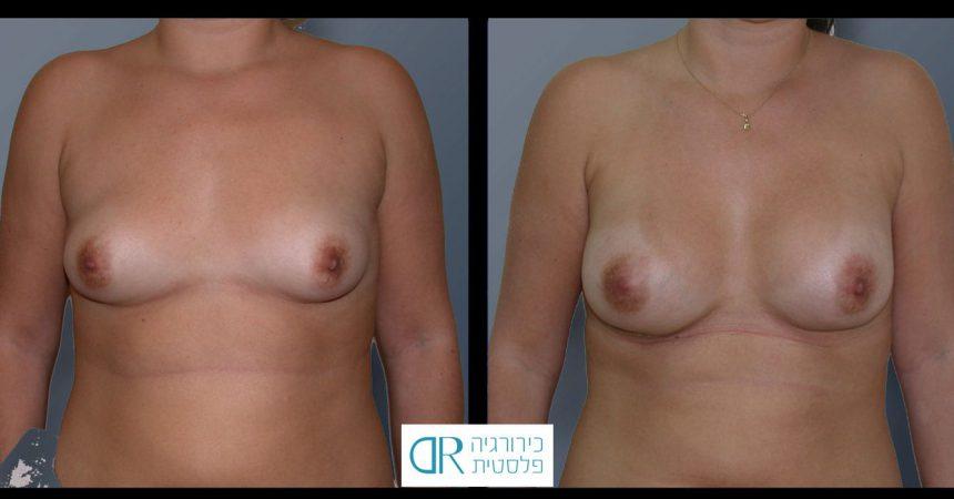 tub-breast-grade-1-2A