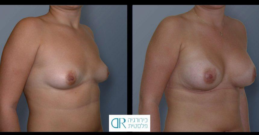 tub-breast-grade-1-2B