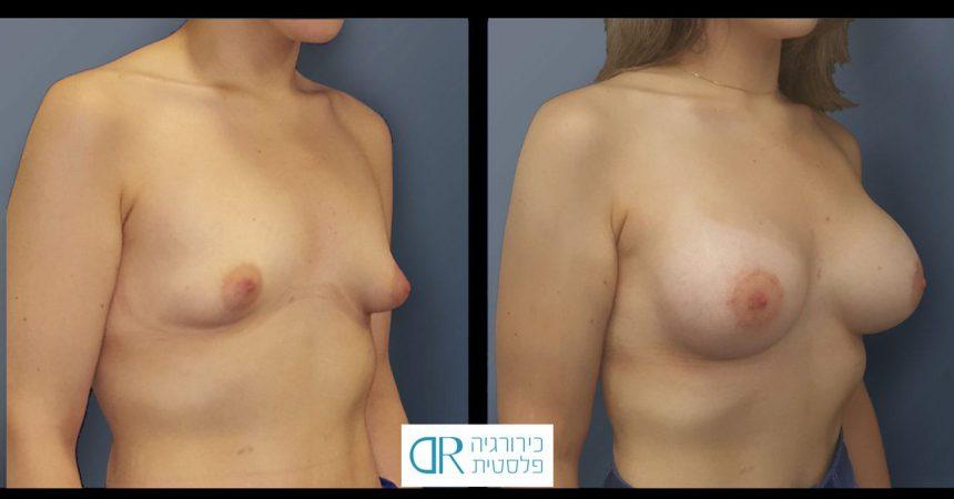 tub-breast-grade-1-3B