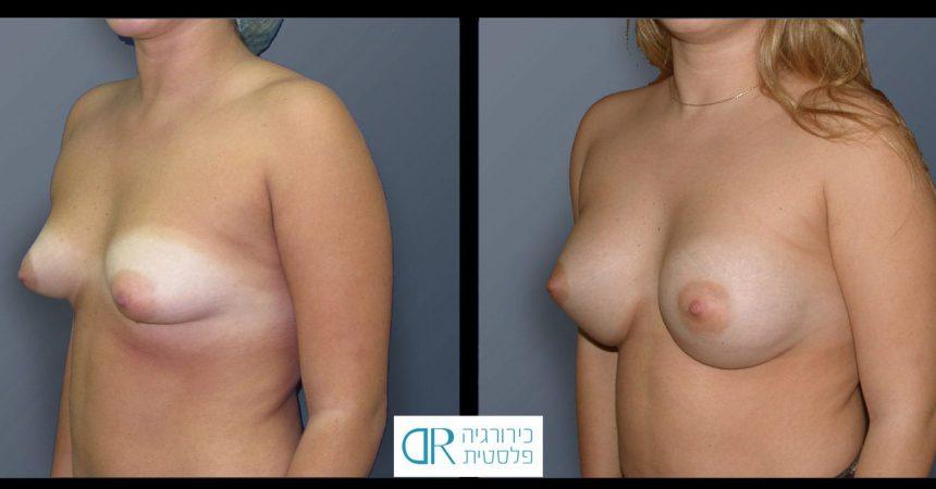 tub-breast-grade-2-1B