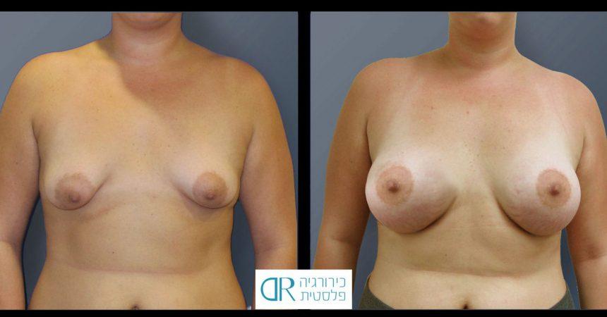 tub-breast-grade-2-2A