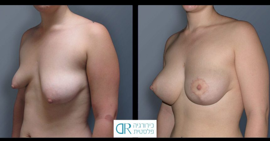 tub-breast-grade-3-1B