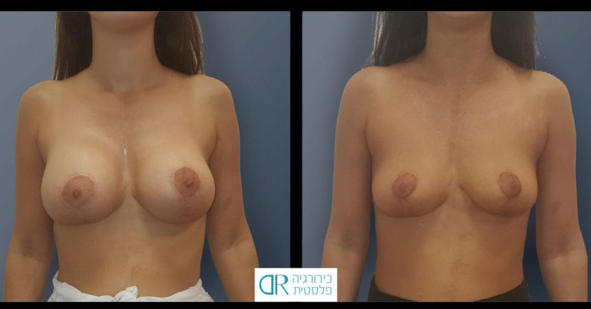 removal-breast-implants-10A