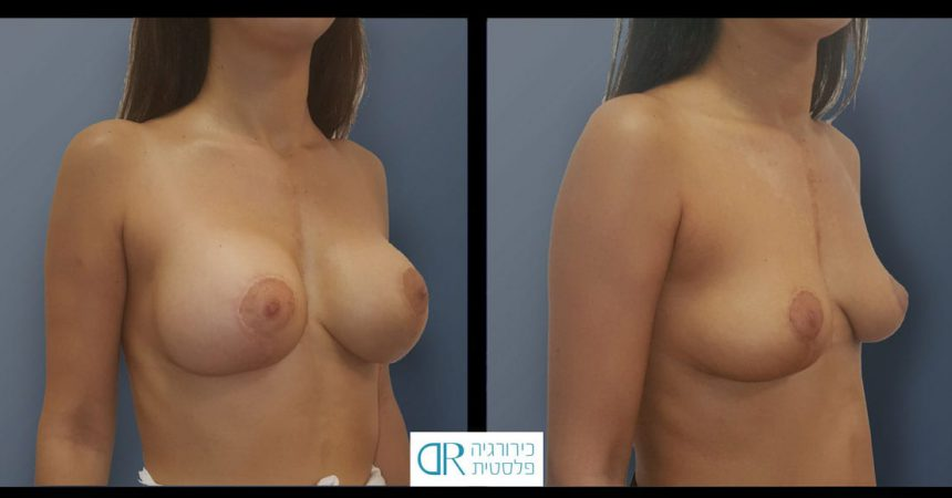 removal-breast-implants-10B