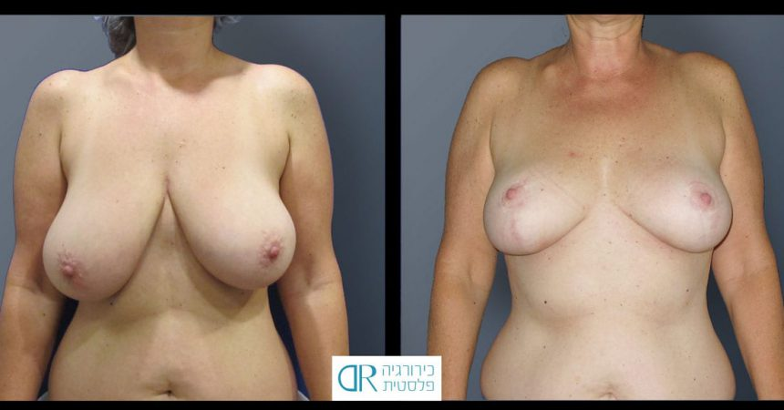 breast-reduction-10A