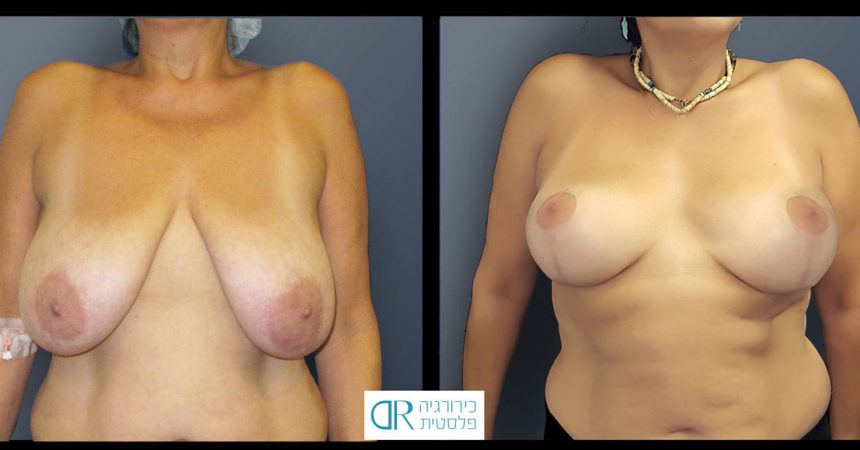 breast-reduction-11A