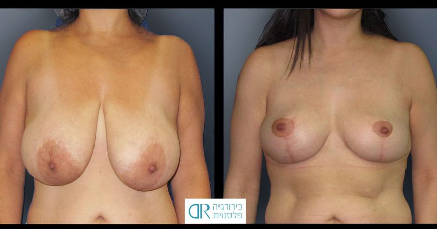 breast-reduction-13A
