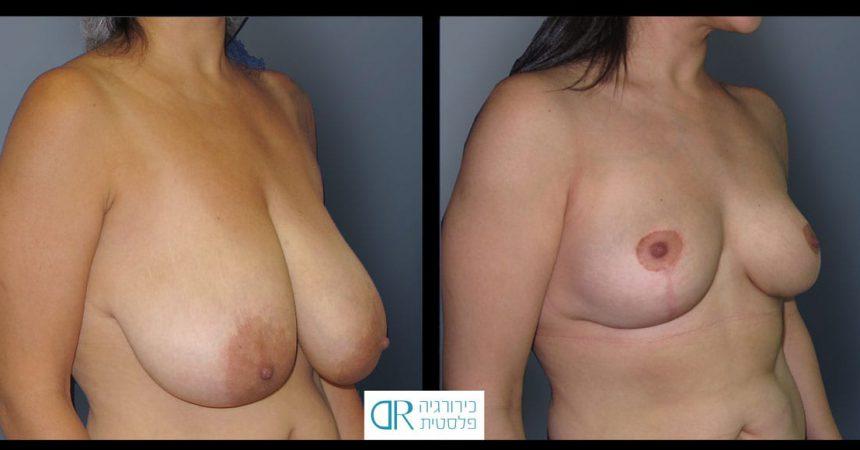 breast-reduction-13B
