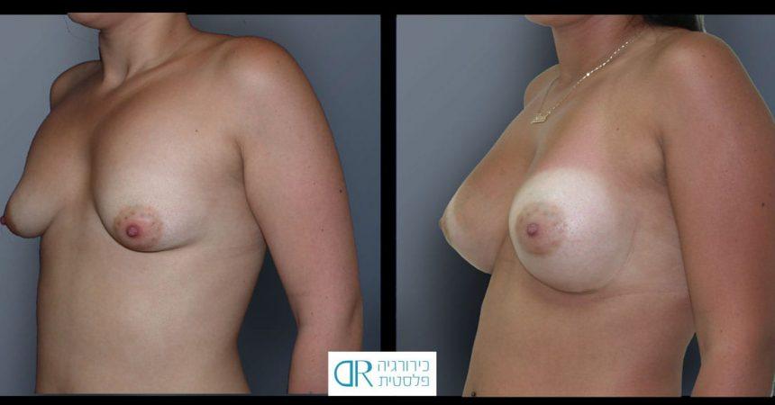 tub-breast-grade-2-3B