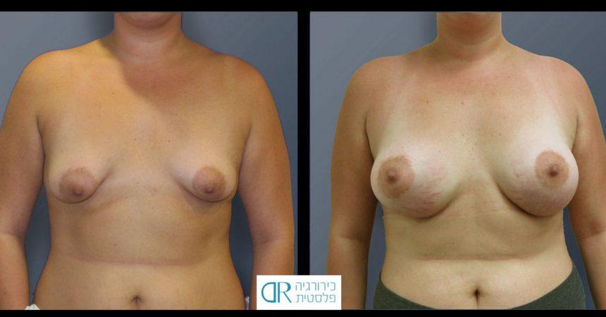 tub-breast-grade-2-4A