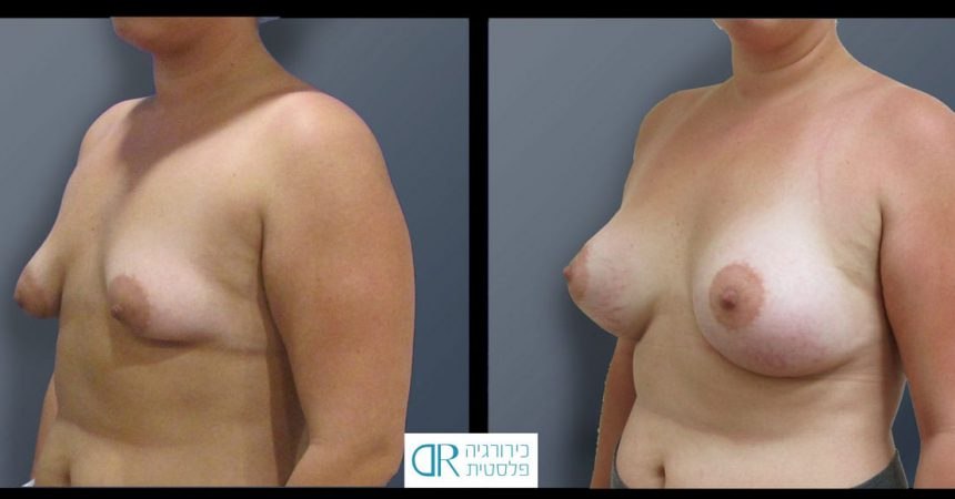 tub-breast-grade-2-4B