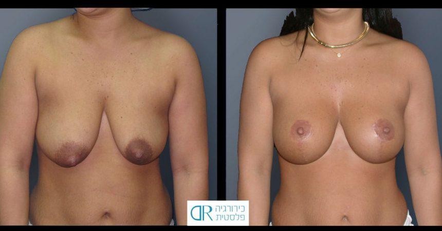 tub-breast-grade-3-3A