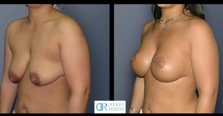 tub-breast-grade-3-3B