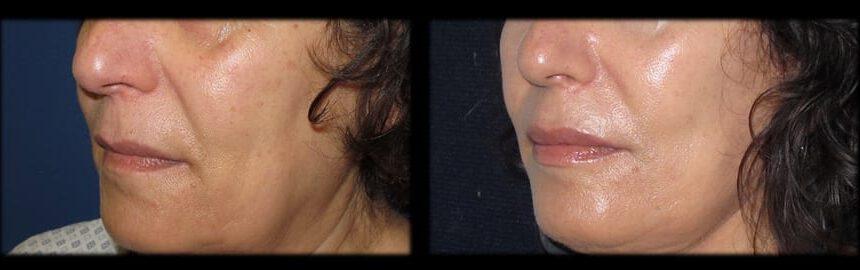 עיבויי שפתיים (1)