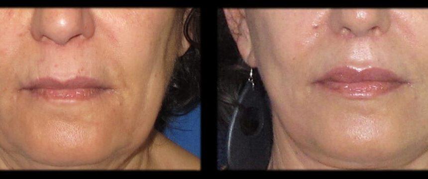 עיבויי שפתיים (2)