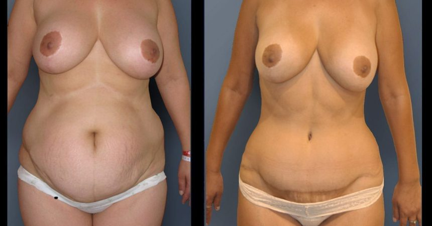 POVH-repair-and-abdominoplasty A