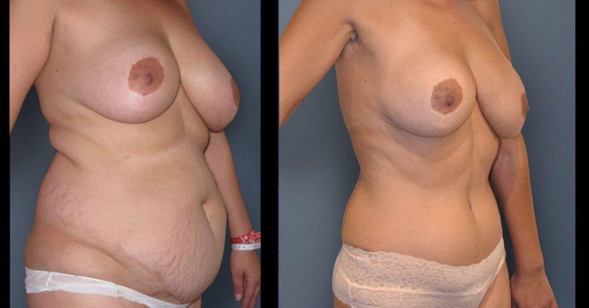 POVH-repair-and-abdominoplasty-B