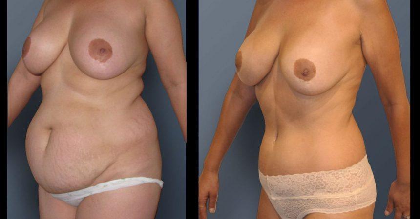 POVH-repair-and-abdominoplasty-c