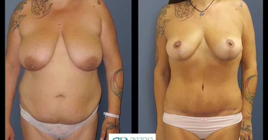 breast-mpx-and-abdomino-and-lipofilling--4A