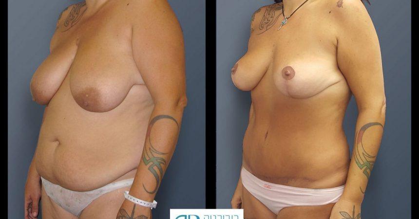 breast-mpx-and-abdomino-and-lipofilling--4B